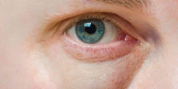 Comment choisir sa crème contour des yeux ?