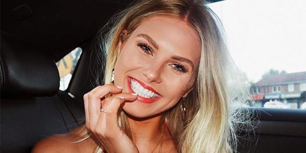 Astuces pour un sourire éclatant et avoir des dents blanches ?